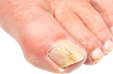 Tratamento caseiro para micose da pele