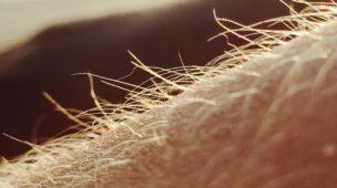 Depilar os pelos é perigoso?