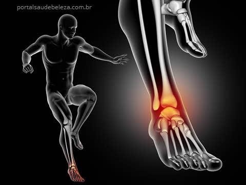Como tratar lesões no tornozelo