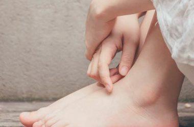 Remédios caseiros para rachaduras nos pés