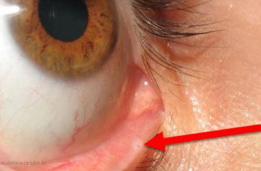 Para que serve o buraco na pálpebra dos olhos?