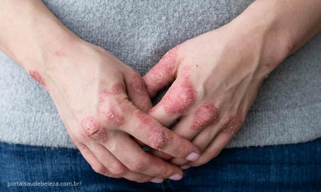 Psoríase é contagiosa? Qual o melhor tratamento?
